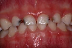 Pre Operative Dental Decay