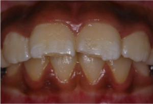 Fracture-Incisors