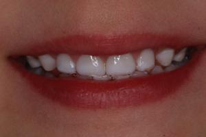 Post Operative Dental Decay